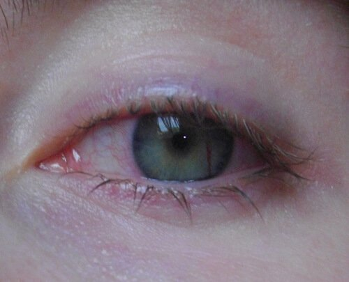 iridotomie bloed iris 2 1