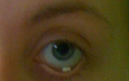 oogoperatie mydriasert tabletje 2