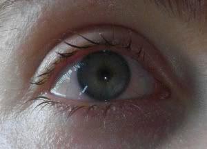 iridotomy right iridotomie rechts