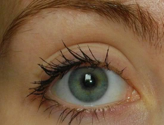 ogen voor iridotomie